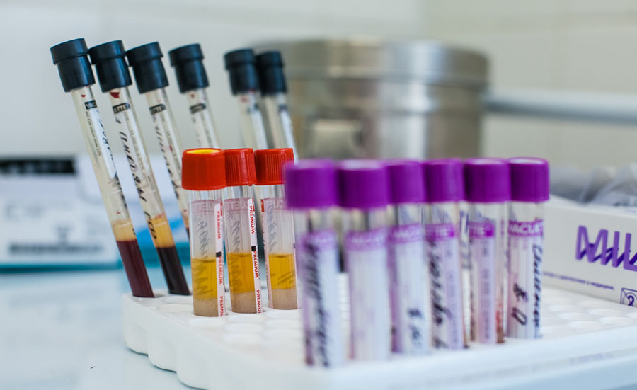 Изменение анализа крови при бронхите